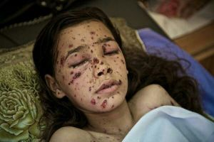 Civil victime d'une bombe DIME