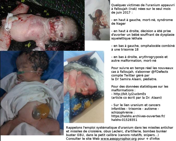 4 cas de malformations congénitales à Falloujah, Irak, nés en juin 2017