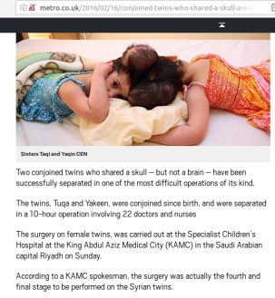 Birth defects in Syria / malformations congénitales en Syrie