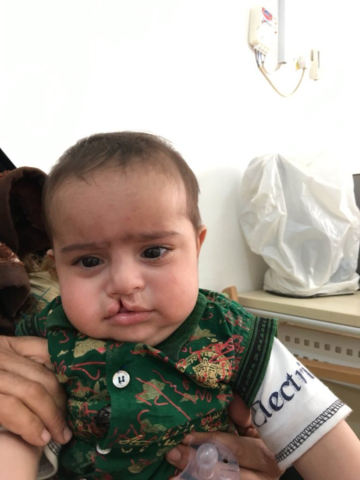 Monthly Delivery Of Birth Defects  Iraq  One Case From -2968